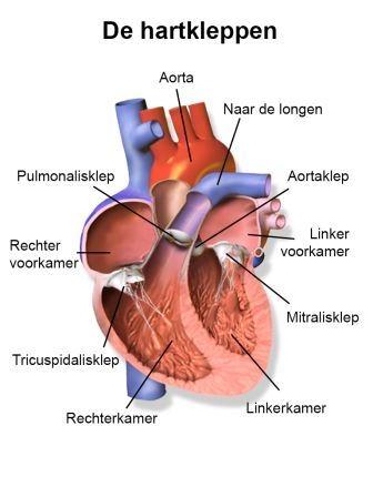 hartkleppen operatie